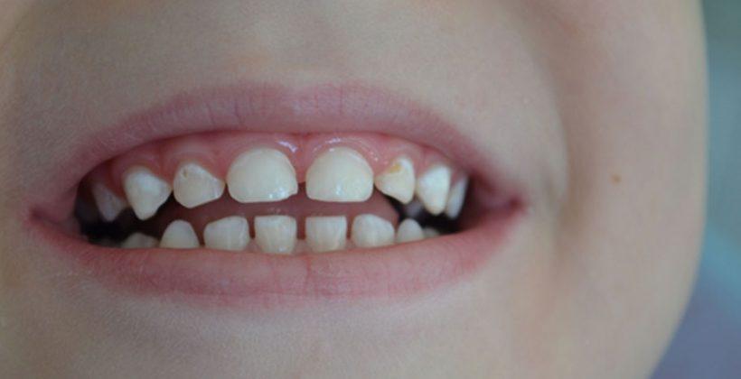 Despre dinții temporari și despre demineralizare la pediatric-dentist