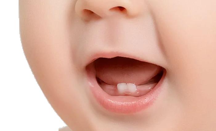 Prima consultație stomatologică a bebelușului(6 luni – 3 ani)